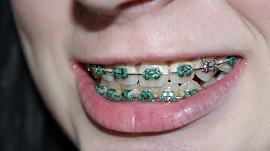 a girl having braces